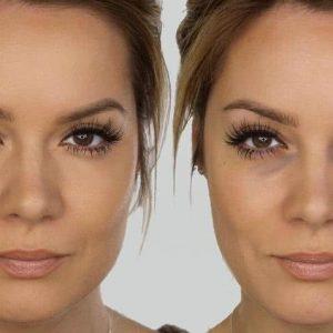 Cómo eliminar las ojeras tratamientos caseros y maquillaje
